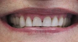 whitening1-after