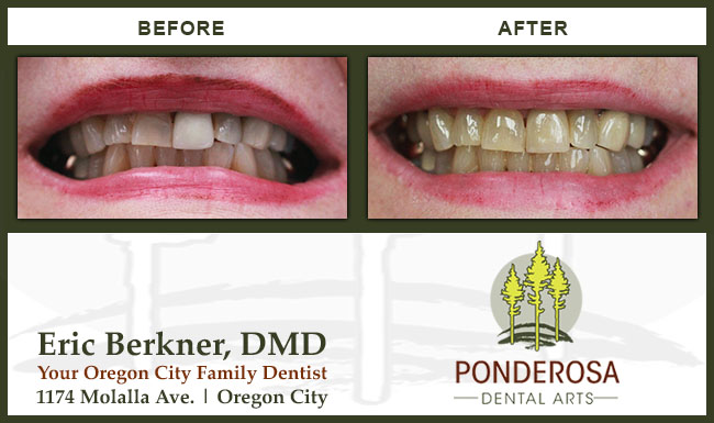 Cosmetic Dentistry Before and After by Ponderosa Dental Arts