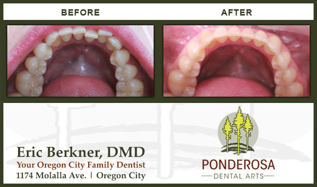Invisalign Before and After by Ponderosa Dental Arts