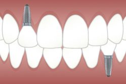 Dental Implants in Oregon City with Ponderosa Dental Arts