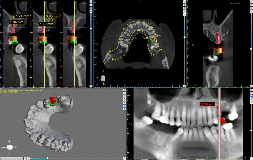 Dental Implant Surgical Guide Implant and Crown Placement in a CBCT Scan at Ponderosa Dental Arts