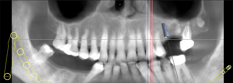 Dental Implant Surgical Guide Wizard Scan at Ponderosa Dental Arts